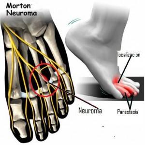 Neuroma de Morton1